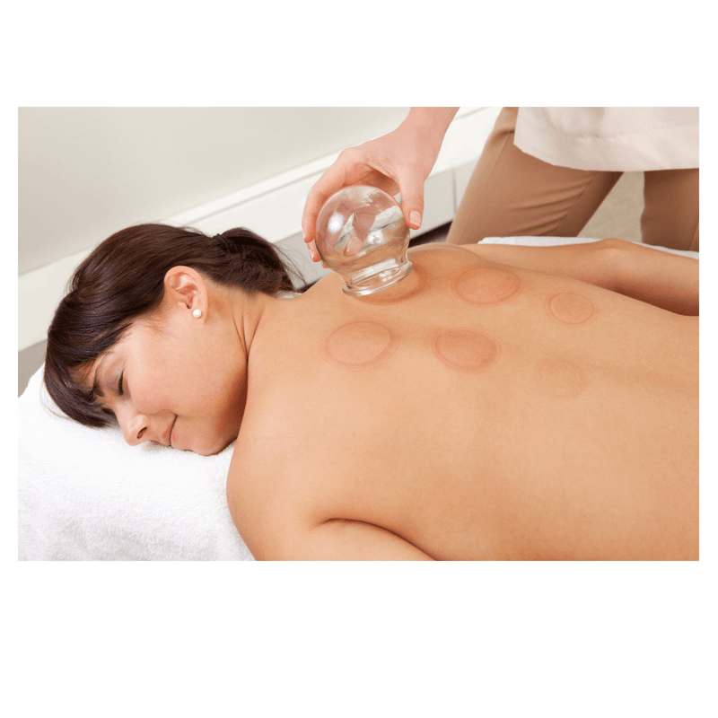 cupping-image.png